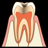 【C1】エナメル質のむし歯