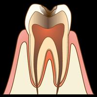 【C2】象牙質のむし歯