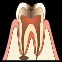 【C3】神経まで達するむし歯