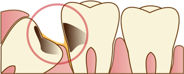 虫歯や歯周病のリスク