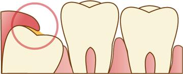 歯肉の炎症