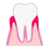 歯ぐきが炎症を起こして腫れている