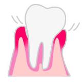 歯の根元が見えてグラグラ。このままでは歯が抜けてしまう